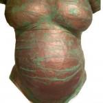 Bronze gips buik almere
